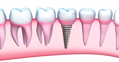 La Importancia de los IMPLANTES DENTALES